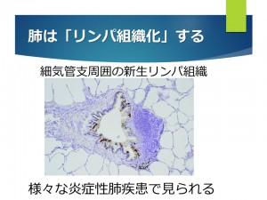 肺のリンパ組織化